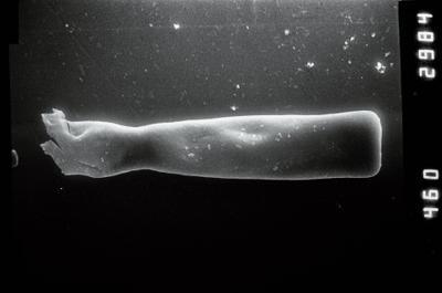 <i><i>Conochitina claviformis</i></i><br />Ohesaare borehole, 294.16 m, Jaani Stage ( 754-887)