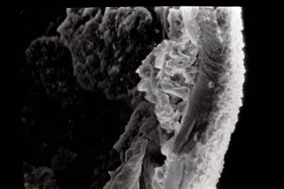 <i><i>Eisenackitina dolioliformis</i></i><br />Pulli 2 borehole, 39.45 m, Adavere Stage ( 754-1790)