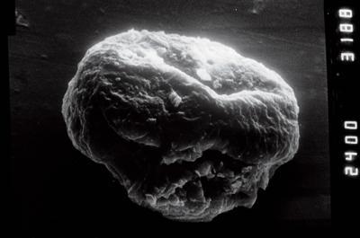 <i><i>Calpichitina</i> | Calpichitina cf.  densa</i><br />Viki borehole, 149.40 m, Adavere Stage ( 754-946)