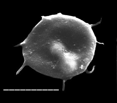 Impluviculus multiangularis (Umnova, 1971) Volkova, 1990, TUG 1520-32