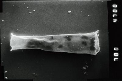 <i><i>Spinachitina maennili</i></i><br />Puikule 42 borehole, 363.50 m, Adavere Stage ( 754-1124)