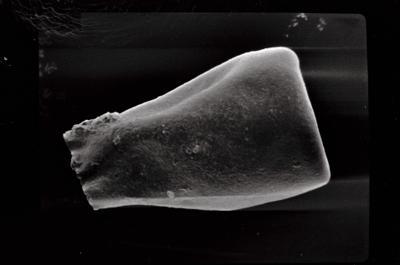 <i><i>Eisenackitina dolioliformis</i></i><br />Varbla 502 borehole, 128.00 m, Jaani Stage ( 754-576)