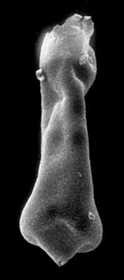 <i><i>Conochitina acuminata</i></i><br />Jaagarahu borehole, 45.50 m, Jaani Stage ( 273-19)