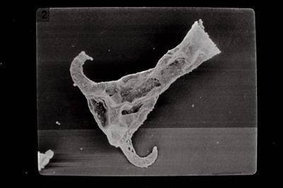 <i><i>Ancyrochitina fragilis</i> | Ancyrochitina cf. fragilis</i><br />Kaugatuma 509 borehole, 46.40 m, Kuressaare Stage ( 754-763)