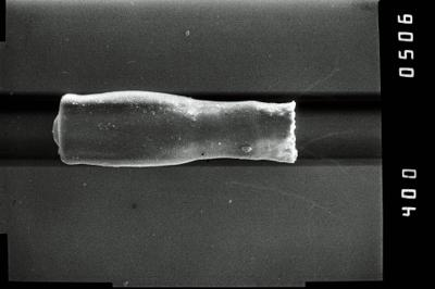 <i><i>Conochitina</i> | Conochitina sp. 2</i><br />Kirikuküla borehole, 47.90 m, Adavere Stage ( 754-1186)