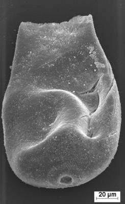 <i><i>Eisenackitina</i>   Eisenackitina cf. lagena</i><br />Staicele 4 borehole, 250.00 m, Jaagarahu Stage ( 754-1396)