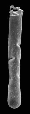 <i><i>Conochitina</i> | Conochitina cf. leptosoma Laufeld, 1974</i><br />Kaugatuma 509 borehole, 241.00 m, Adavere Stage ( 427-15)