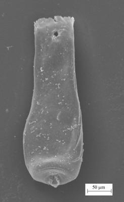 <i><i>Conochitina emmastensis</i></i><br />Staicele 4 borehole, 296.00 m, Adavere Stage ( 754-1379)
