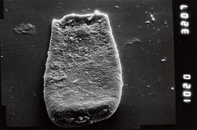 <i><i>Conochitina</i> | Conochitina sp. 6</i><br />Ohesaare borehole, 356.26 m, Adavere Stage ( 754-923)