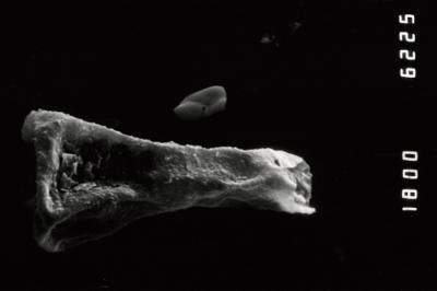 <i><i>Ancyrochitina</i> | Ancyrochitina cf. brevispinosa</i><br />Ohesaare borehole, 112.60 m, Paadla Stage ( 754-992)