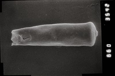 <i><i>Conochitina pachycephala</i></i><br />Kihnu 526 borehole, 127.30 m, Jaagarahu Stage ( 754-803)