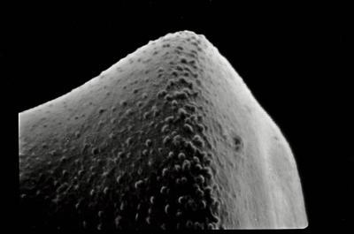 <i><i>Conochitina latifrons</i></i><br />Ohesaare borehole, 110.44 m, Paadla Stage ( 754-566)