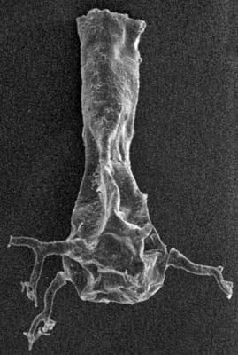 <i><i>Ancyrochitina rumbaensis</i></i><br />Ikla borehole, 308.40 m, Adavere Stage ( 272-24)