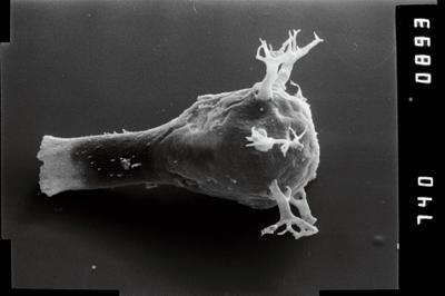 <i><i>Ancyrochitina rumbaensis</i></i><br />Vängla trench,  m, Adavere Stage ( 754-1947)