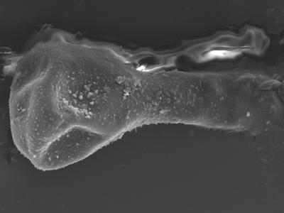 <i><i>Sphaerochitina lycoperdoides</i></i><br />Ohesaare borehole, 147.60 m, Rootsiküla Stage ( 754-358)