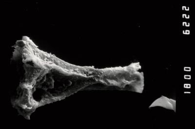 <i><i>Ancyrochitina</i> | Ancyrochitina cf. diabolus</i><br />Ohesaare borehole, 112.60 m, Paadla Stage ( 754-990)