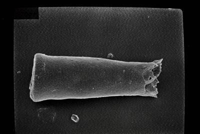 <i><i>Conochitina elegans</i> | Conochitina sp. aff. elegans</i><br />Kihnu 526 borehole, 131.70 m, Jaagarahu Stage ( 754-152)
