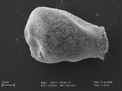 <i><i>Eisenackitina oviformis</i> | Eisenackitina cf. oviformis</i><br />Pavilosta 51 borehole, 695.00 m, Kuressaare Stage ( 754-225)