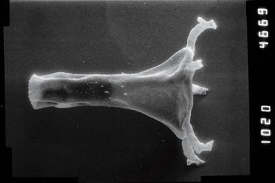 <i><i>Plectochitina</i> | Plectochitina cf. spongiosa</i><br />Puikule 42 borehole, 340.30 m, Adavere Stage ( 754-1105)