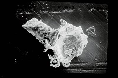 <i><i>Ancyrochitina gutnica</i></i><br />Ruhnu 500 borehole, 347.40 m, Jaagarahu Stage ( 754-554)