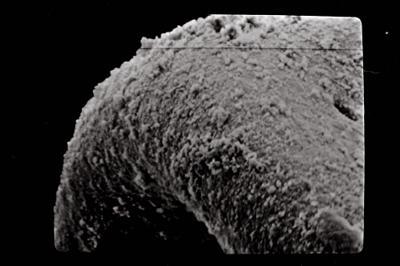 <i><i>Eisenackitina intermedia</i> | Eisenackitina cf. intermedia</i><br />Kolka 54 borehole, 253.60 m, Kaugatuma Stage ( 754-737)