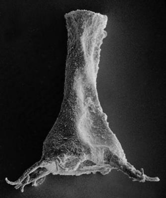 <i><i>Ancyrochitina ancyrea</i></i><br />Ruhnu 500 borehole, 371.50 m, Jaagarahu Stage ( 272-36)