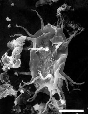 Acanthodiacrodium sp., GIT 344-2