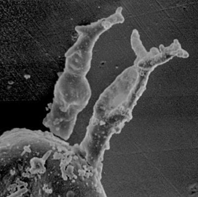 <i><i>Plectochitina nodifera</i></i><br />Ohesaare borehole, 441.60 m, Juuru Stage ( 212-4)
