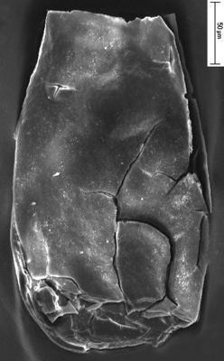 <i><i>Eisenackitina dolioliformis</i> | ?Eisenackitina dolioliformis Umnova, 1976</i><br />Staicele 4 borehole, 295.00 m, Adavere Stage ( 350-8)