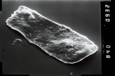 <i><i>Conochitina</i> | Conochitina aff. protracta (Zaslavskaya, 1980</i><br />Ruhnu 500 borehole, 494.45 m, Raikküla Stage ( 754-1022)