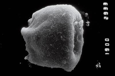 <i><i>Eisenackitina</i>   Eisenackitina sp.</i><br />Nagli 106 borehole, 609.00 m, Jaani Stage ( 754-871)