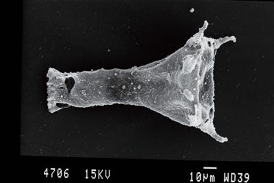 <i><i>Clathrochitina</i> | Clathrochitina sp.</i><br />Gussev 1 borehole, Kaliningrad oblast, 1393.00 m, Paadla Stage ( 754-65)