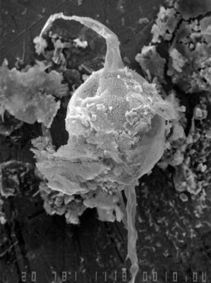 Leiofusa subcircularis Uutela et Tynni, 1991, GIT 344-151