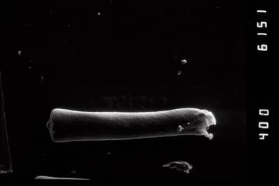 <i><i>Conochitina claviformis</i></i><br />Ohesaare borehole, 68.30 m, Kuressaare Stage ( 754-958)