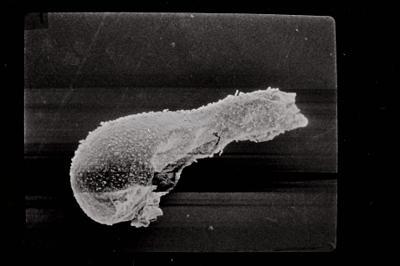 <i><i>Angochitina elongata</i> | Angochitina cf. elongata</i><br />Kaugatuma 509 borehole, 81.10 m, Paadla Stage ( 754-747)