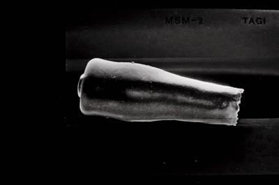 <i><i>Conochitina pachycephala</i> | Conochitina cf. pachycephala</i><br />Ohesaare borehole, 222.50 m, Jaagarahu Stage ( 754-651)