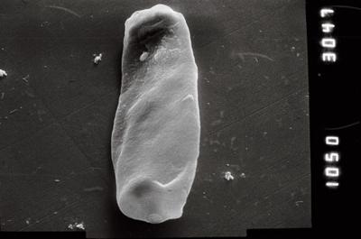 <i><i>Conochitina</i> | Conochitina cf. flamma</i><br />Nagli 106 borehole, 615.30 m, Adavere Stage ( 754-865)
