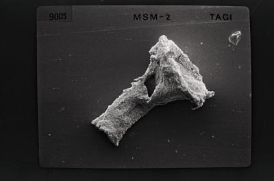 <i><i>Ancyrochitina tomentosa</i> | Ancyrochitina cf. tomentosa</i><br />Ruhnu 500 borehole, 404.20 m, Jaagarahu Stage ( 754-559)