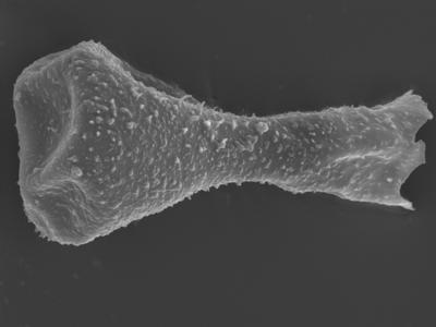 <i><i>Sphaerochitina concava</i></i><br />Ohesaare borehole, 147.60 m, Rootsiküla Stage ( 754-354)