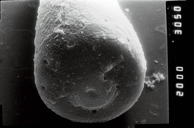 <i><i>Conochitina</i>   Conochitina cf. linearistriata</i><br />Ruhnu 500 borehole, 338.75 m, Jaagarahu Stage ( 754-861)
