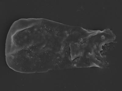 <i><i>Cingulochitina</i> | Cingulochitina sp.</i><br />Kolka 54 borehole, 530.00 m, Jaagarahu Stage ( 754-1275)