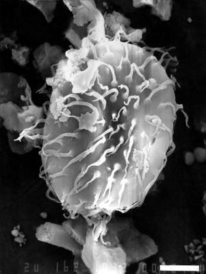 Baltisphaeridium aff. B. capillatum Jardine, Combaz, Magloire, Peniguel et Vachey, 1974, GIT 344-32