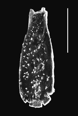 <i><i>Angochitina multiplex</i></i><br />Piilsi 729 borehole, 103.14 m, Keila Stage ( 664-2)