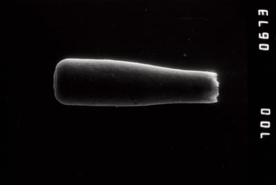 <i><i>Conochitina pachycephala</i></i><br />Riksu 803 borehole, 87.70 m, Jaagarahu Stage ( 754-1321)