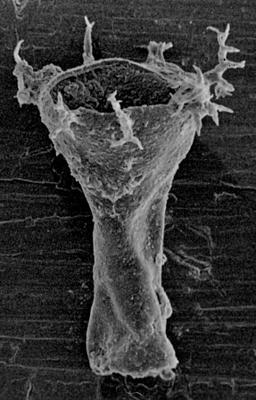 <i><i>Ancyrochitina laevaensis</i></i><br />Laeva 10 borehole, 122.50 m, Juuru Stage ( 212-2)