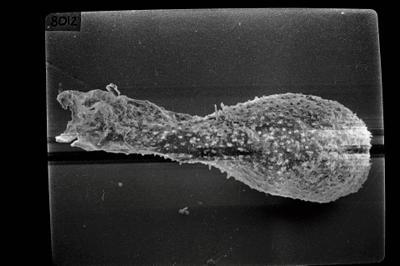 <i><i>Angochitina longicollis</i></i><br />Pulli 2 borehole, 20.78 m, Jaani Stage ( 754-1787)