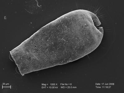 <i><i>Eisenackitina elongata</i></i><br />Pavilosta 51 borehole, 711.00 m, Kuressaare Stage ( 754-223)