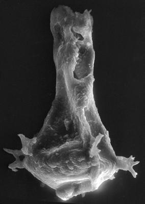 <i><i>Chitinozoa</i> | Ancyrochitina aff. convexa Nestor, 1980</i><br />Viki borehole, 189.45 m, Adavere Stage ( 272-43)