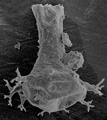 <i><i>Ancyrochitina laevaensis</i></i><br />Ohesaare borehole, 441.60 m, Juuru Stage ( 212-3)