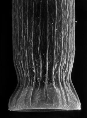 <i><i>Laufeldochitina stentor</i> | Cyathochitina stentor (Eisenack, 1937)</i><br />Rapla borehole, 167.30 m, Kukruse Stage ( 190-21)